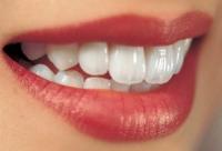 容易蛀牙的人,要切斷不必要的人際關係?