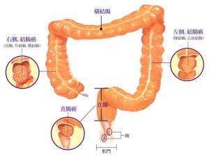 大腸癌篩查先導計劃免費檢查