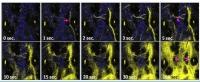 澳大研發磷光探針助精準切除腫瘤