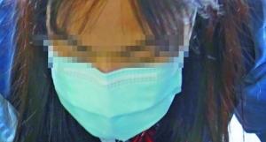 口罩下的痘痘