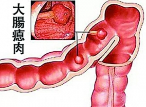 漫談中醫治大腸瘜肉